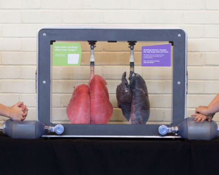 School pupils inflate a healthy and unhealthy lung