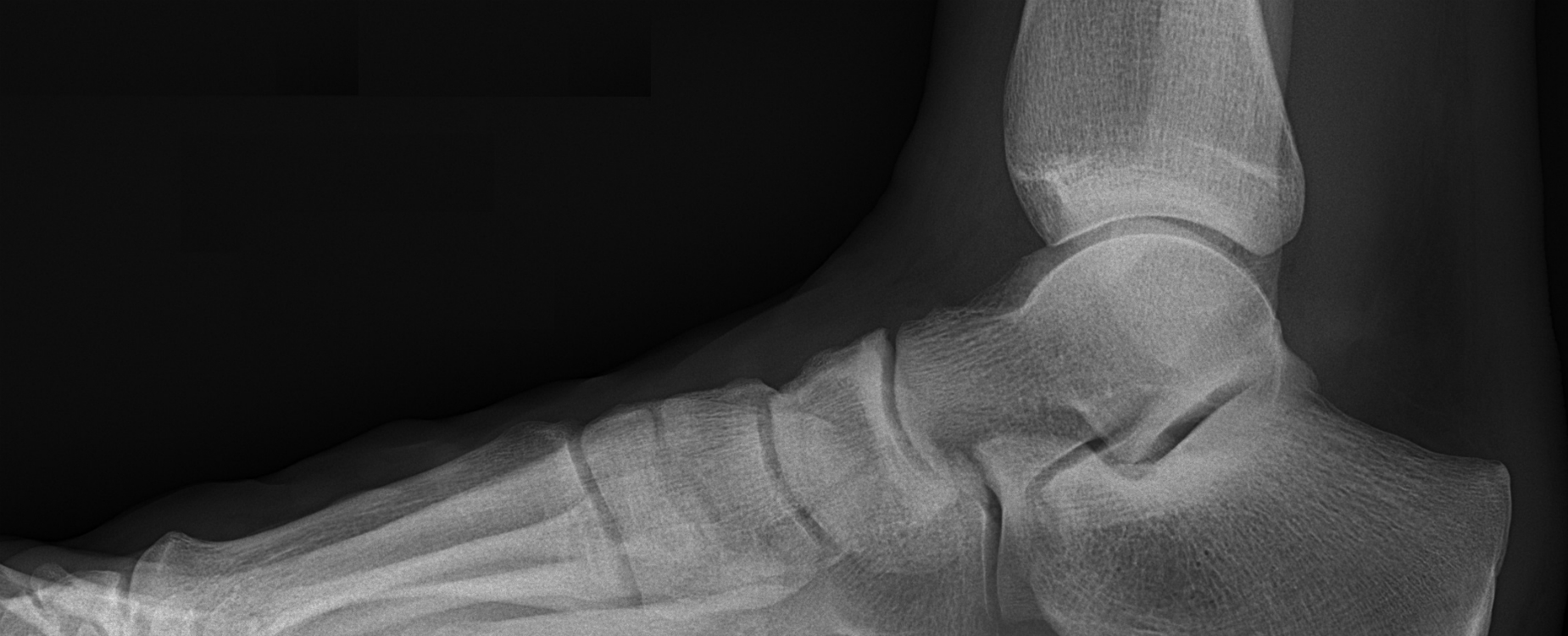 X Ray of ankle